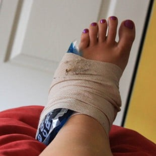 the bright side of an injury