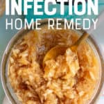 "A horseradish and honey natural sinus relief home remedy in a glass jar, with a spoon dipping in to it. A text overlay reads ""Sinus Infection Home Remedy."""
